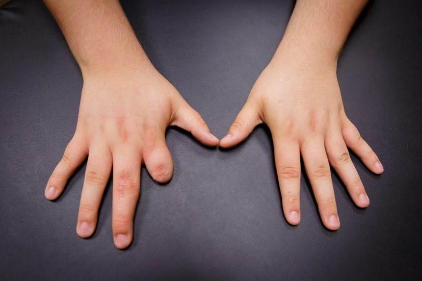 استفاده نکردن از پروتز انگشت دست