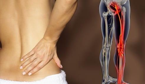 سیاتیک از علل شیع کمر درد