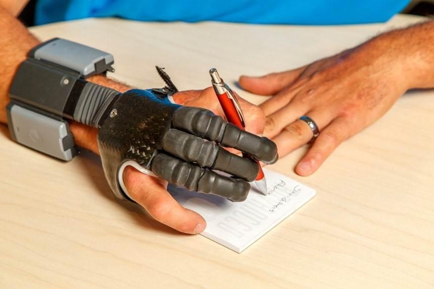 پروتزهای انگشت دست فعال به وسیله انرژی الکتریکی