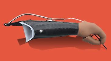 پروتزهای دست سنتی و مکانیکی