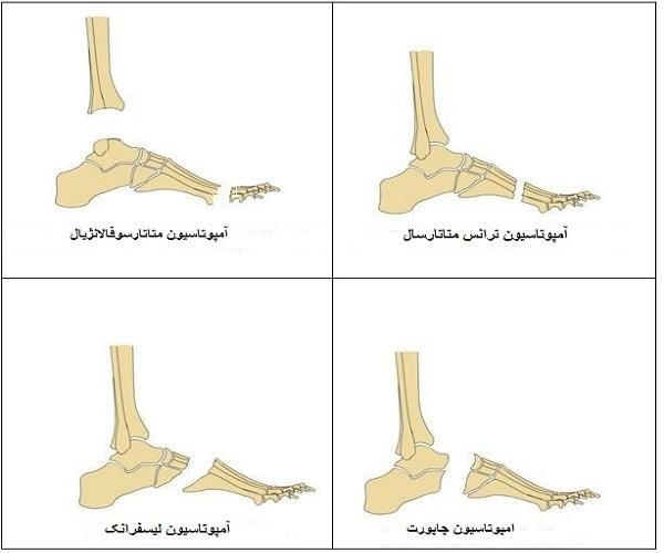 پروتزهای قسمتهای مختلف پا