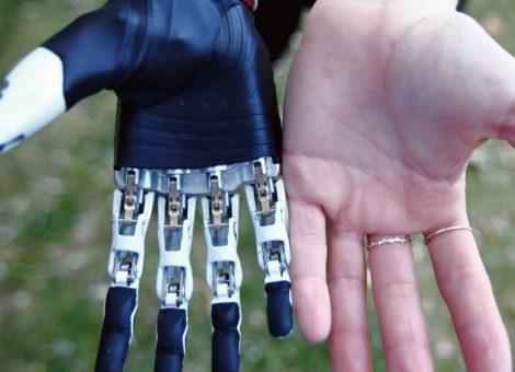 پروتز دست تطبیقی