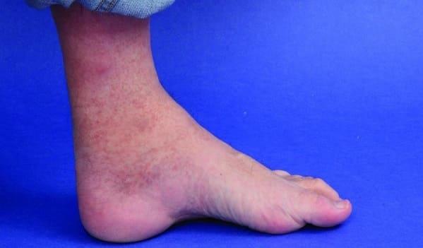 پس کاووس از علل درد گودی یا قوس کف پا